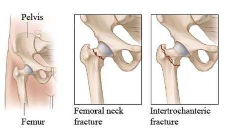Flap S Dentistry Blog Hip Fracture In Elderly Women